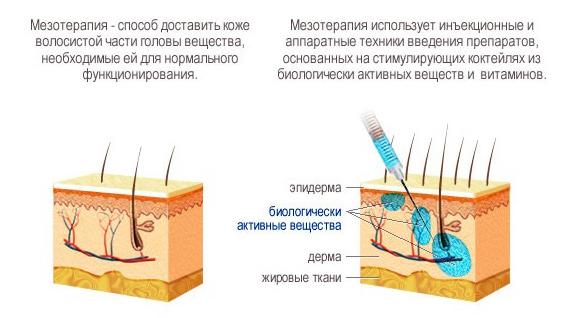 здоровые волосы, лечение алопеции, мезотерапия головы, плазмолифтинг